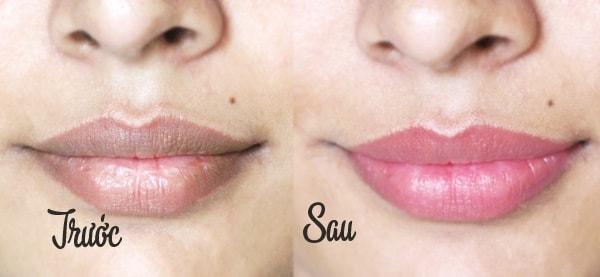 cách trị thâm môi tại nhà hiệu quả